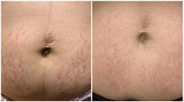 Laser Skin Resurfacing Vaginal Resurfacing Chemical Peels Laser Scar Reduction Microlaserbrasion Spider Vein Removal And Skin Tag Removal At Beautiful Laser