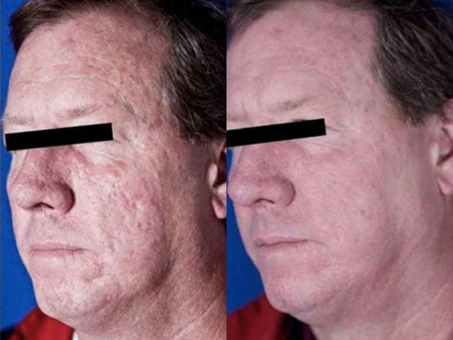 Laser Skin Resurfacing Laser Hair Removal Laser Tattoo Removal Chemical Peels Laser Nail