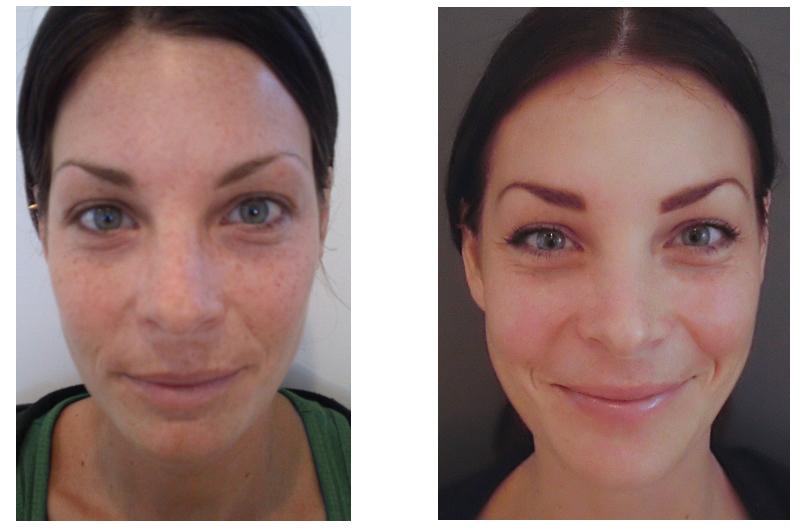 comment faire pour enlever une cicatrice sur le visage 6 mois
